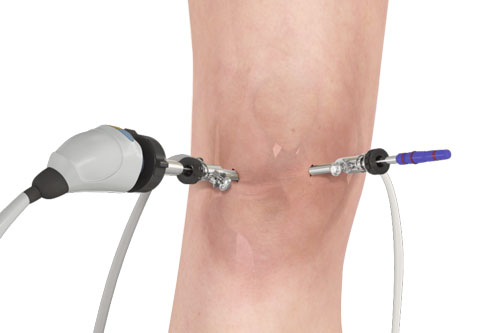 Knee-Arthroscopy